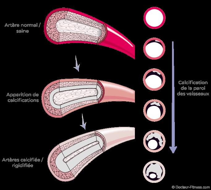 schéma paroi vaisseaux sanguin calcification