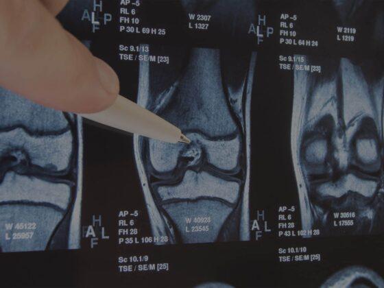 radiographie genou cartilage