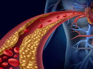 cholestérol vaisseau sanguin