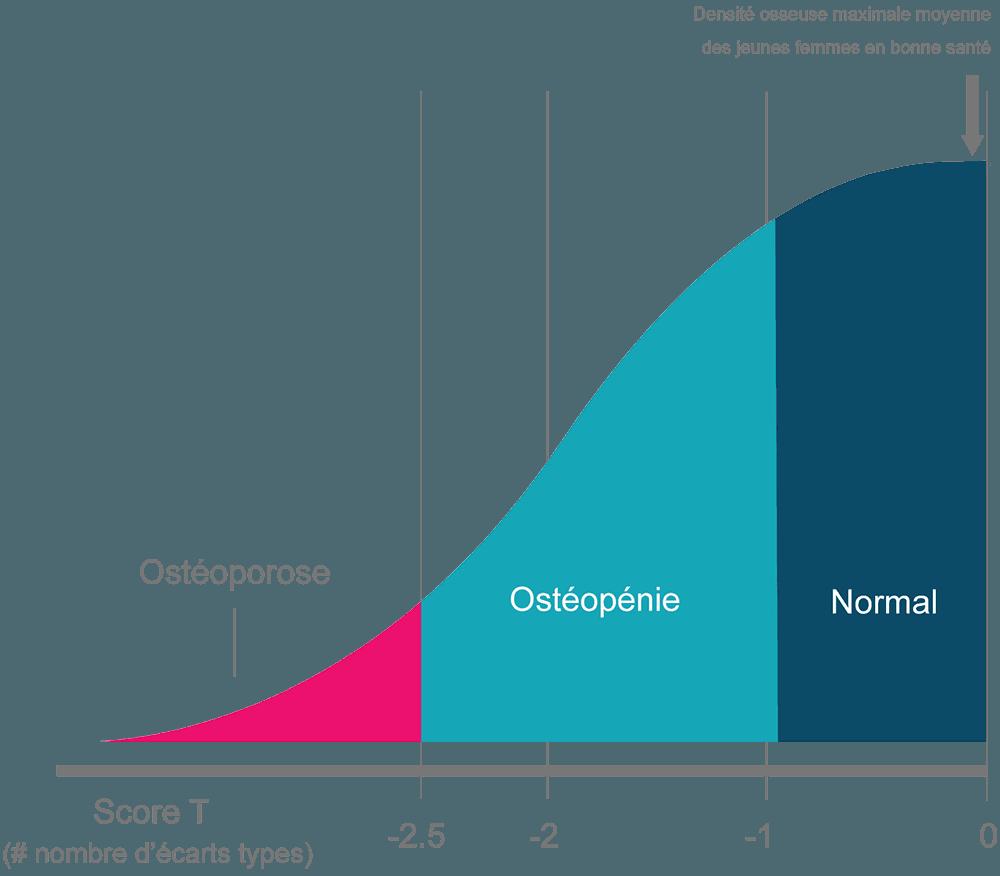 graphique score T densité minérale osseuse ostéoporose ostéopénie